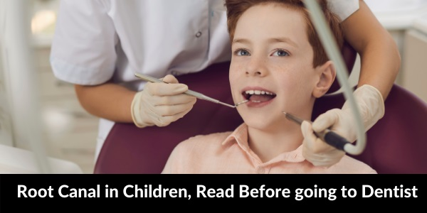 Root Canal in Children | When and Why ? Learn Before Going to Dentist